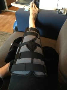 My knee in an immobilizer